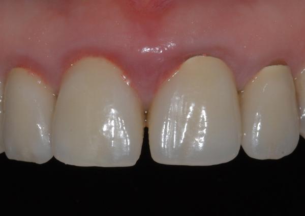 Before-Caso 8