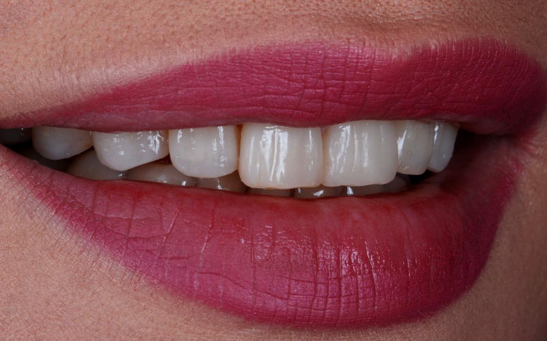 Odontoiatria Estetica / Cosmetic Dentistry