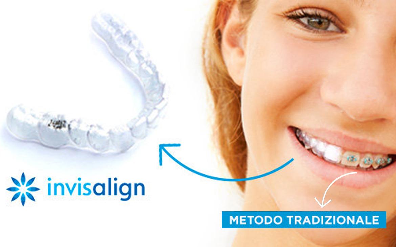 Ortodonzia Invisibile – Invisalign©