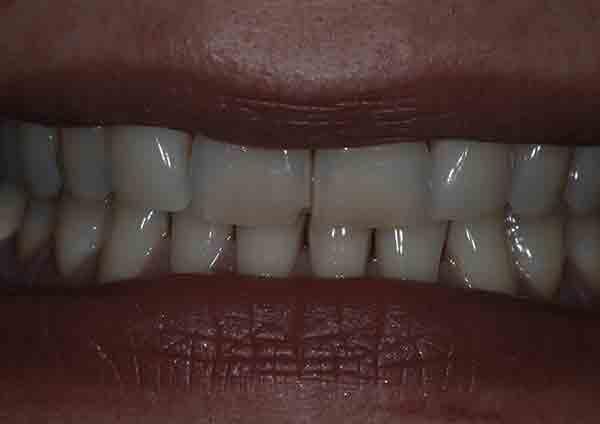 Before-Caso 4