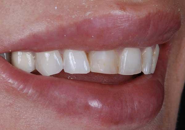 Before-Caso 3