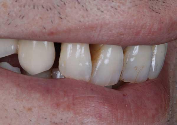 Before-Caso 1
